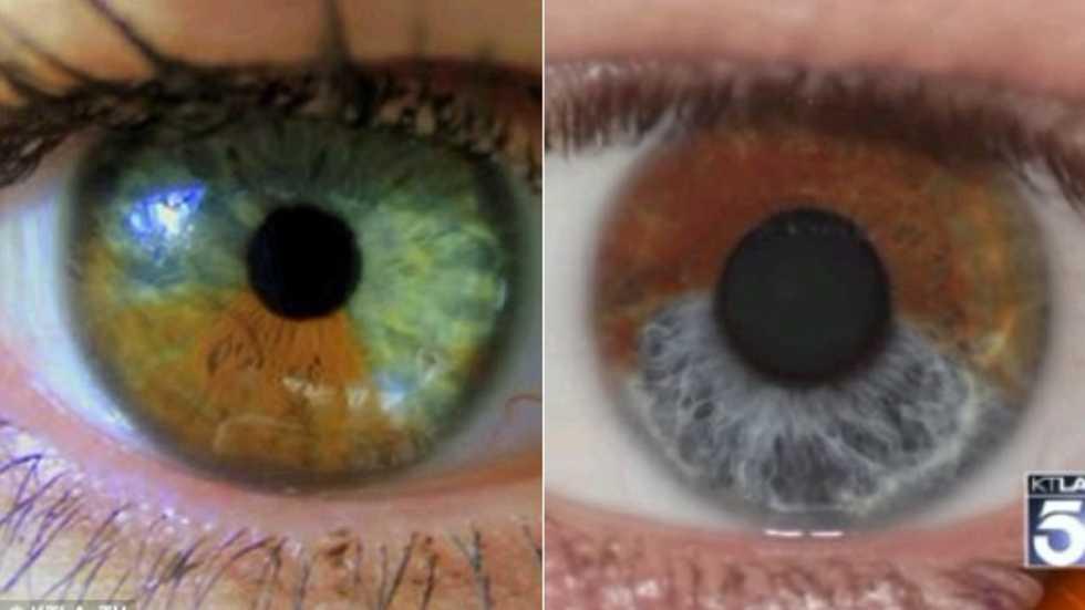 laser för ögonen
