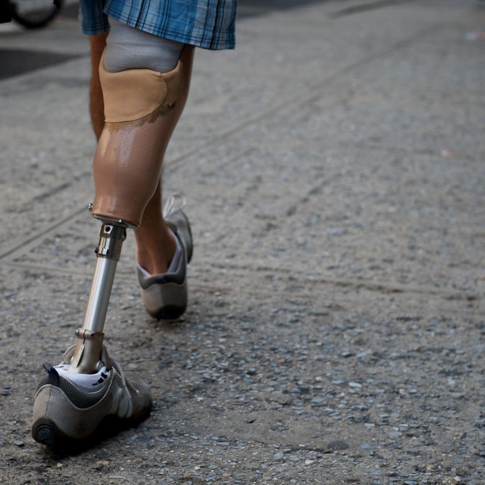 Genombrott för bättre proteser