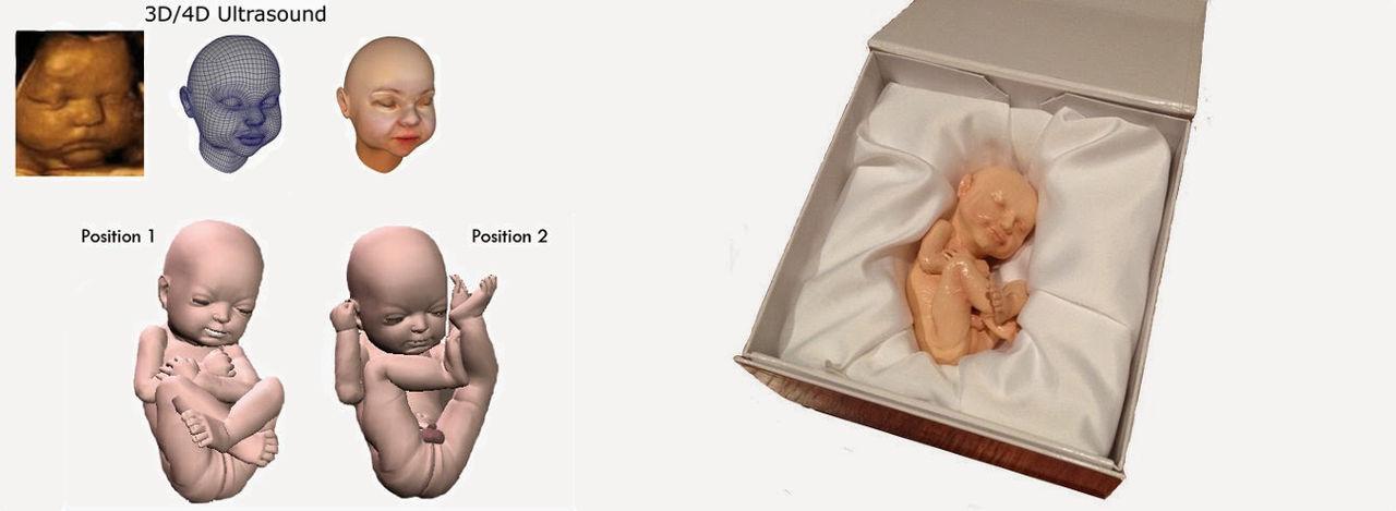 3D-printa foster