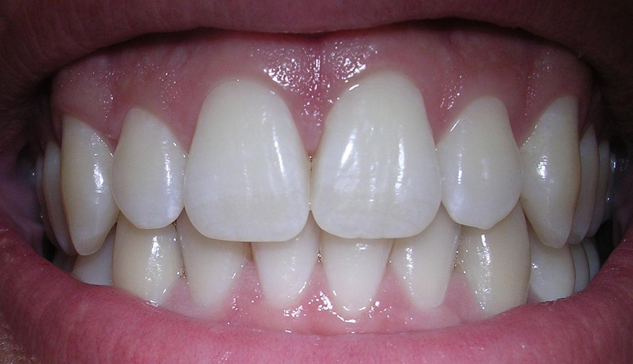 Forskare fixar fyllning som självläker tänder