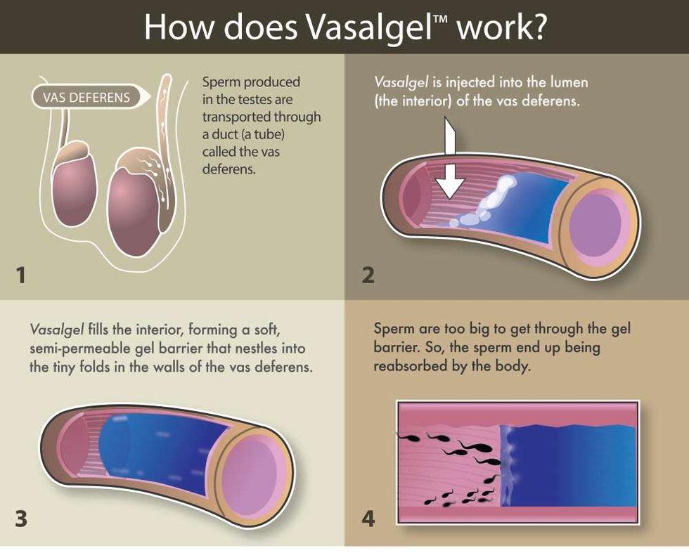 Vasalgel har testats som preventivmedel på apor