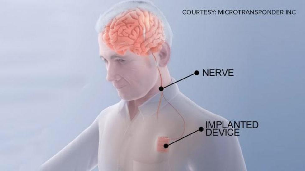 Pacemaker för hjärnan kan få strokepatienter att tillfriskna snabbare