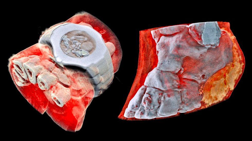 Här är världens första röntgenbild i färg på en människa