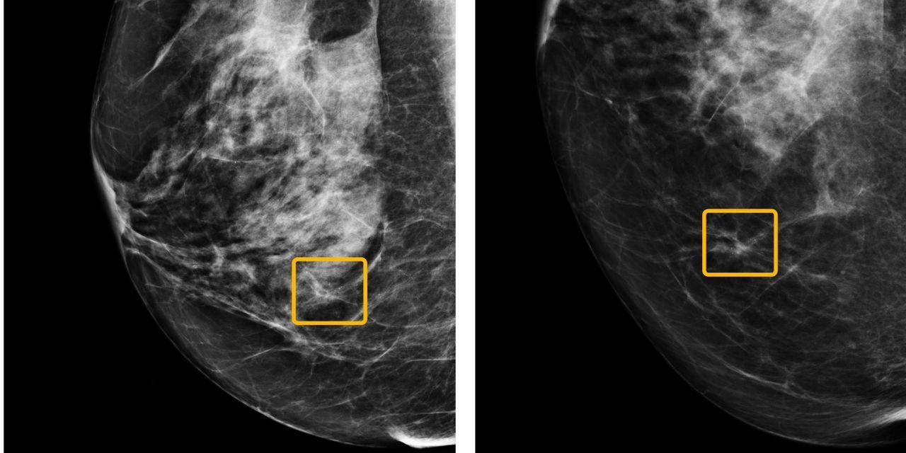 Google har en AI som kan upptäcka bröstcancer