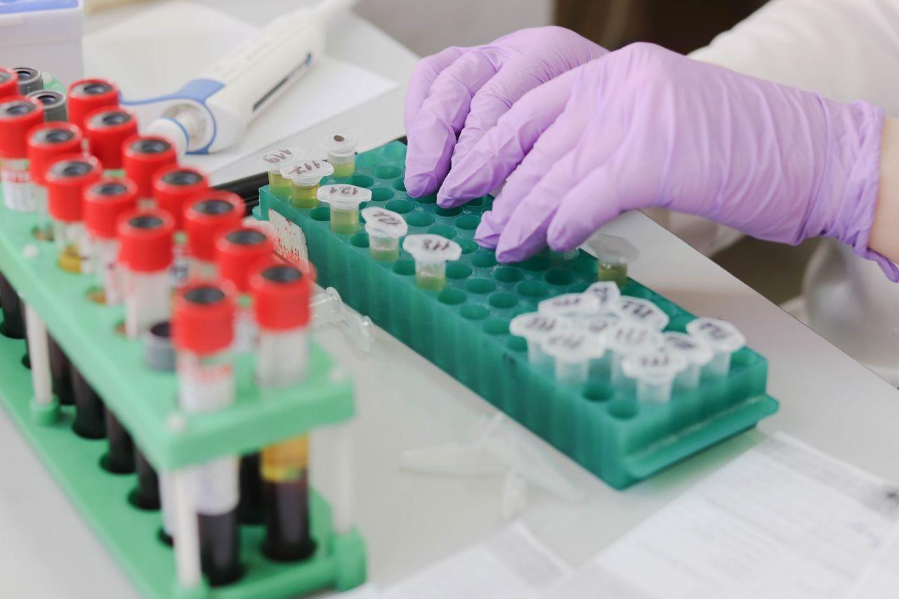 Karolinska institutet tar fram snabbare coronatest