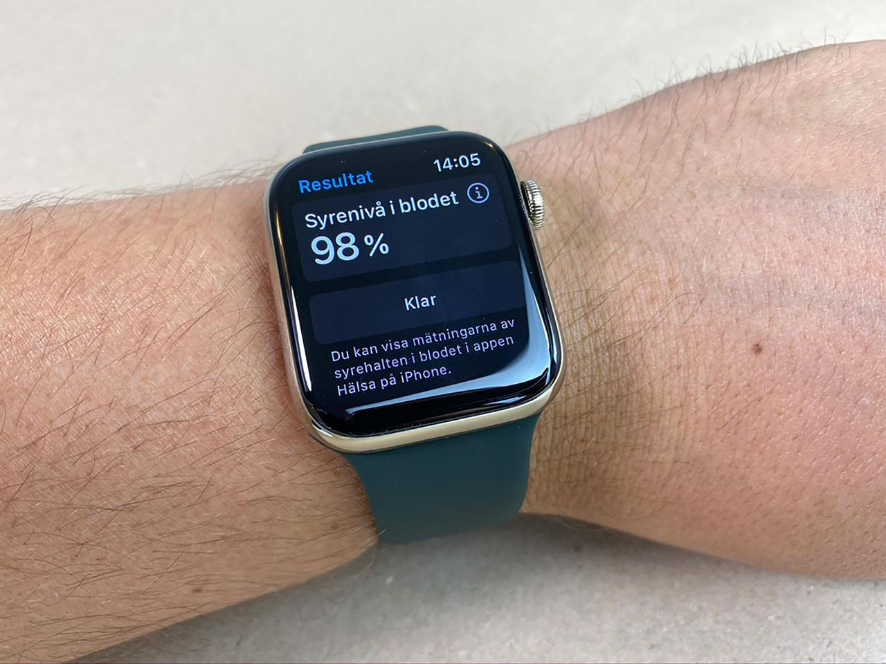 Apple Watch kan få en glukosmätare